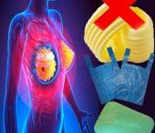 لماذا نصاب بالسرطان؟ الجزء الثاني